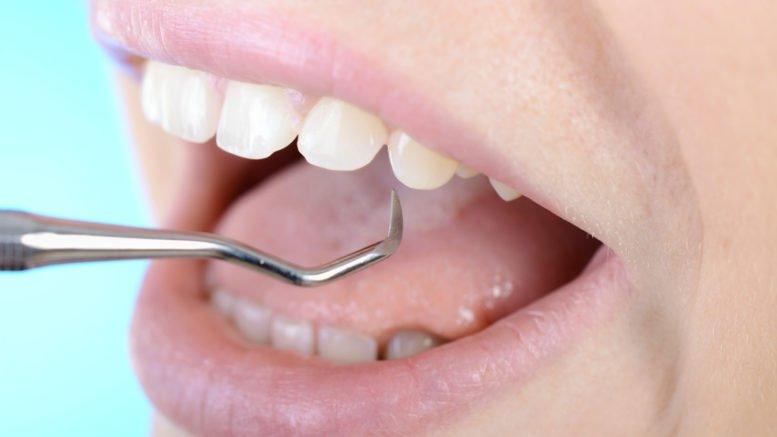 Zahnfleischbluten in der Schwangerschaft @Dan Race, fotolia